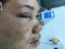 Đang đứng trước cửa nhà, người phụ nữ 32 tuổi bị viên đạn ghim thẳng vào mắt, suýt mù vĩnh viễn