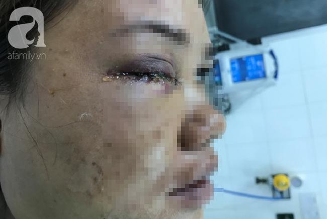 Đang đứng trước cửa nhà, người phụ nữ 32 tuổi bị viên đạn ghim thẳng vào mắt, suýt mù vĩnh viễn-1