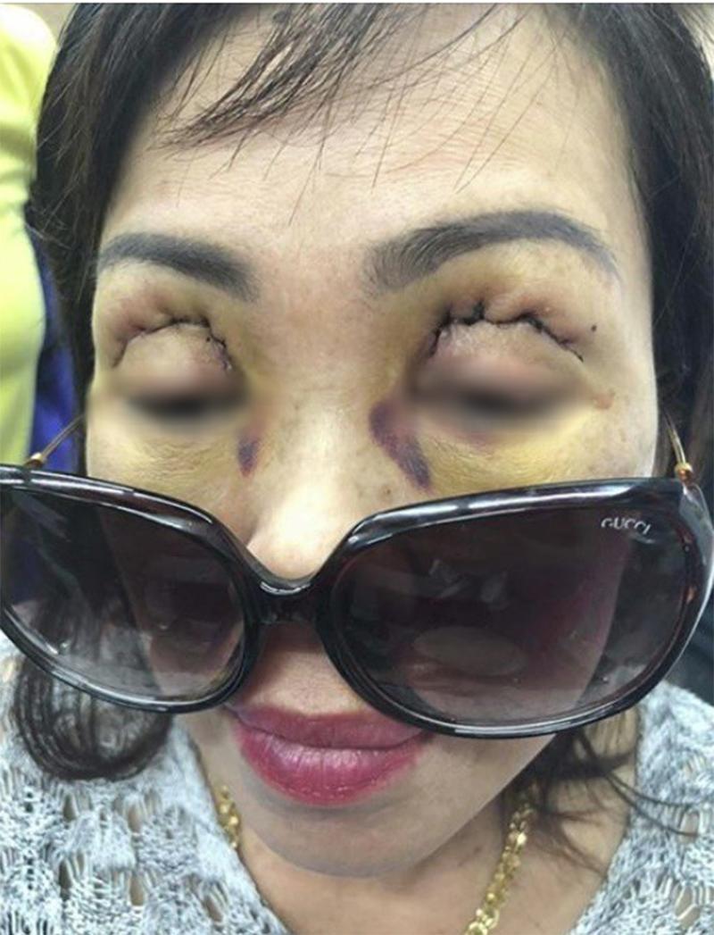 Nhìn những hình ảnh kinh hoàng này, chị em có cân nhắc lại về quyết định cắt mí mắt không?-3
