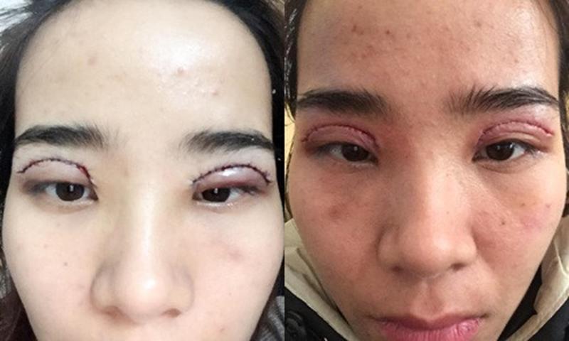 Nhìn những hình ảnh kinh hoàng này, chị em có cân nhắc lại về quyết định cắt mí mắt không?-4