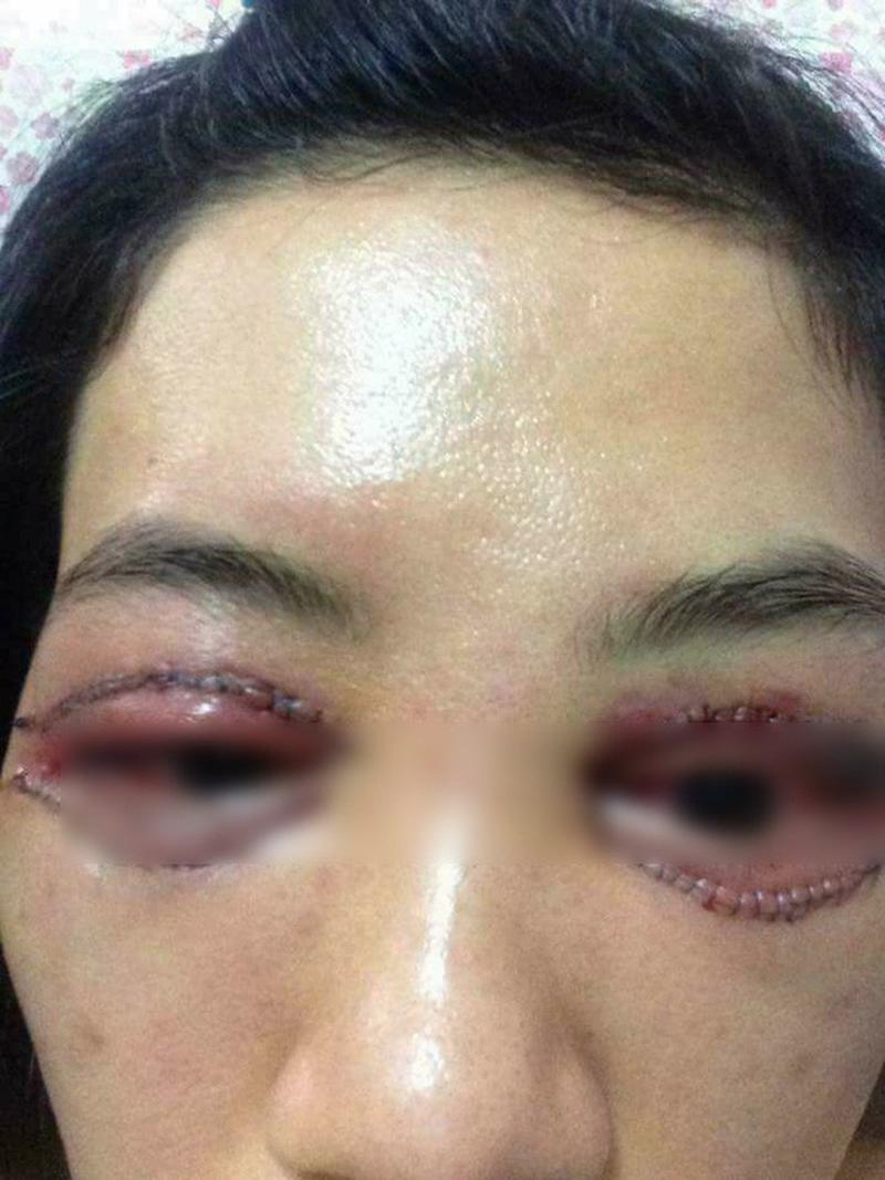 Nhìn những hình ảnh kinh hoàng này, chị em có cân nhắc lại về quyết định cắt mí mắt không?-8