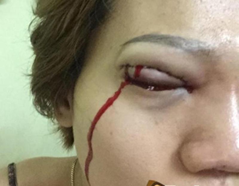 Nhìn những hình ảnh kinh hoàng này, chị em có cân nhắc lại về quyết định cắt mí mắt không?-9