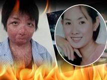 Nhan sắc và cuộc sống hiện tại của cô gái bị chồng tẩm xăng thiêu sống gây chấn động một thời ở Hưng Yên