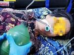 Nghệ An: Cứu sống bệnh nhân vỡ tim do tai nạn lao động-3