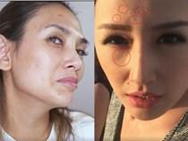 Tiểu Vy, Mai Phương Thuý và loạt mỹ nhân dù make-up kỹ càng vẫn lộ làn da chi chít mụn