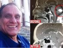 Mỹ: Người đàn ông thấp thỏm chuẩn bị phẫu thuật u não, trước ngày lên bàn mổ, khối u