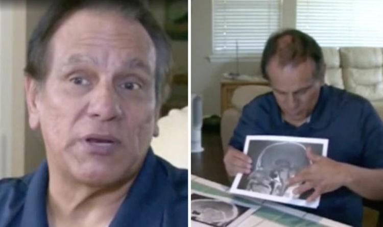 Mỹ: Người đàn ông thấp thỏm chuẩn bị phẫu thuật u não, trước ngày lên bàn mổ, khối u sợ quá biến mất luôn-3
