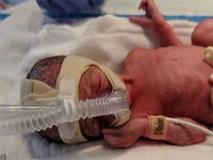Tưởng đau bụng do bị bệnh dạ dày, mẹ không ngờ lại là hội chứng nguy hiểm khiến con gái ra đời sớm 2 tháng