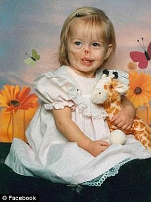 Sự thay đổi ngoạn mục của bé gái bị chồn ăn nửa mặt và ước mơ nhỏ thành hiện thực sau 15 năm-2