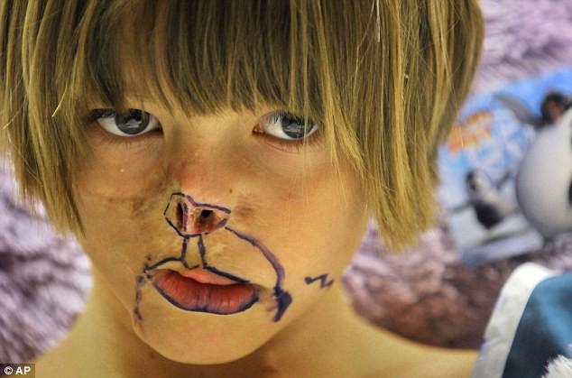 Sự thay đổi ngoạn mục của bé gái bị chồn ăn nửa mặt và ước mơ nhỏ thành hiện thực sau 15 năm-8