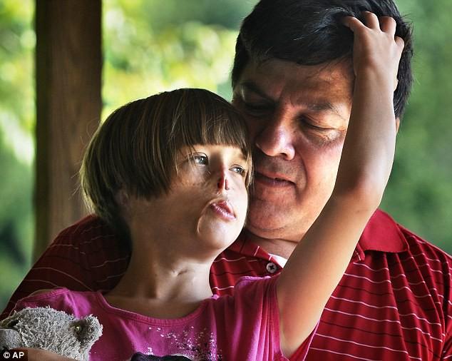 Sự thay đổi ngoạn mục của bé gái bị chồn ăn nửa mặt và ước mơ nhỏ thành hiện thực sau 15 năm-9