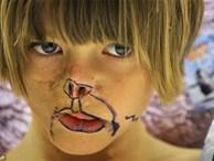 Sự thay đổi ngoạn mục của bé gái bị chồn ăn nửa mặt và ước mơ nhỏ thành hiện thực sau 15 năm