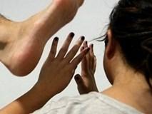 Nỗi đau đớn ám ảnh của người vợ trẻ bị chồng dùng dao... dạy dỗ