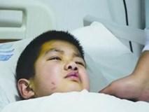 Cậu bé 7 tuổi bị ung thư gan giai đoạn cuối, nguyên nhân do chất độc có trong bếp hầu hết mọi gia đình