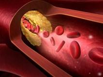 Không chỉ người béo, gầy cũng có thể bị mỡ máu cao: 6 thực phẩm nên ăn để