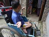 Cô gái bại liệt, nặng 20 kg bất ngờ mang thai