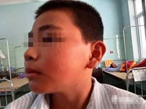Trần tình của cô giáo Quảng Bình cho học sinh tát bạn