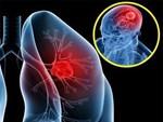 6 bệnh viêm phổi - phế quản thường gặp-4