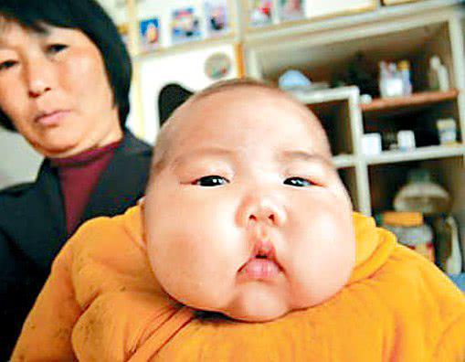 Cháu béo rụt cổ bà vẫn hãnh diện vì mát tay, bác sĩ thảng thốt bệnh ở mức nghiêm trọng-1