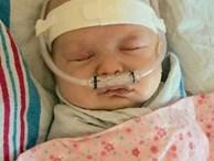 Nhận nụ hôn âu yếm từ anh trai, bé 6 tuần tuổi đã phải chiến đấu chống lại virus RSV đến mức suýt chết