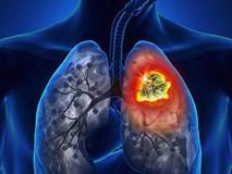 Đây là 5 bệnh ung thư người Việt mắc nhiều nhất