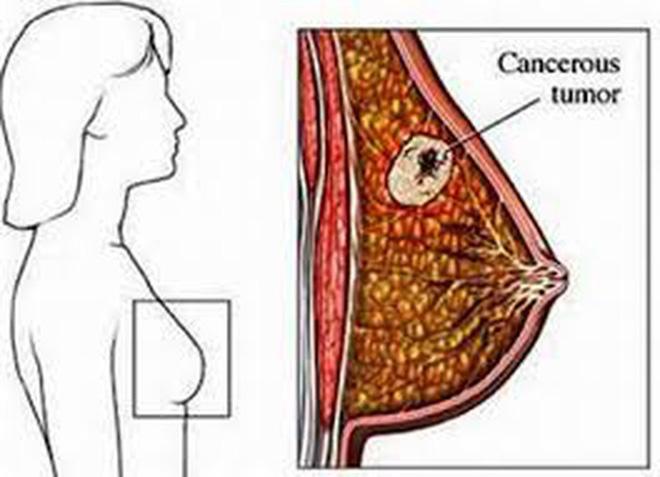 3 dấu hiệu ung thư vú đang tiến triển trong người: Học ngay cách tự khám để phát hiện sớm-2