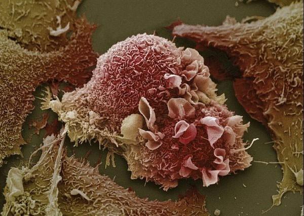 3 dấu hiệu ung thư vú đang tiến triển trong người: Học ngay cách tự khám để phát hiện sớm-1