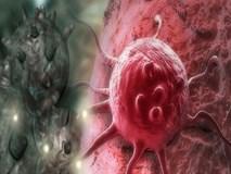 3 dấu hiệu ung thư vú đang tiến triển trong người: Học ngay cách tự khám để phát hiện sớm