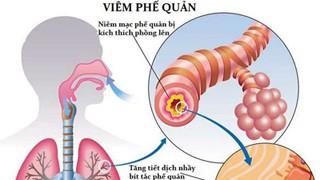 6 bệnh viêm phổi - phế quản thường gặp-2