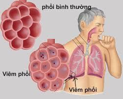 6 bệnh viêm phổi - phế quản thường gặp-3