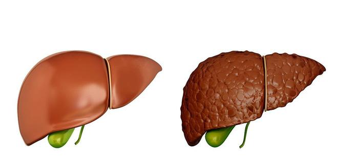 Khi có sự thay đổi này xảy ra ở ngực: 90% khả năng bạn đã bị xơ gan, hãy nhanh đi khám-2