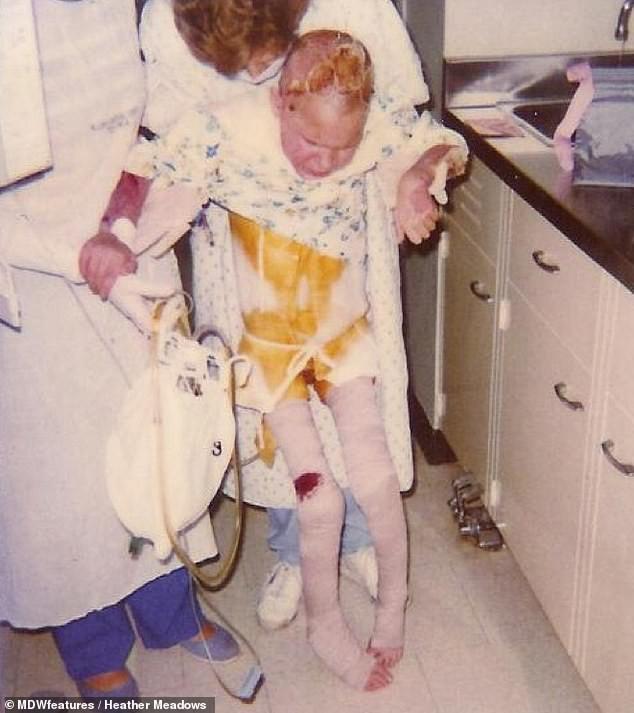 Đứa trẻ 7 tuổi toàn thân bốc cháy như đuốc sau tai nạn kinh hoàng, 30 năm trôi qua ai cũng tròn mắt khi nhìn thấy cơ thể cô ấy-2