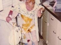 Đứa trẻ 7 tuổi toàn thân bốc cháy như đuốc sau tai nạn kinh hoàng, 30 năm trôi qua ai cũng tròn mắt khi nhìn thấy cơ thể cô ấy