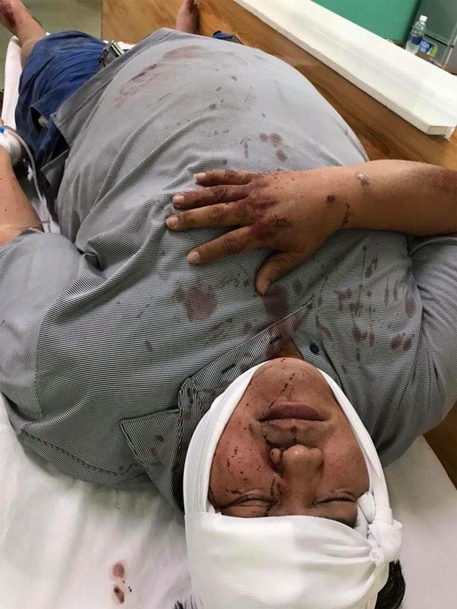Hoàng Mập đi cấp cứu sau chấn thương vì bị kẻ lạ tông xe rồi bỏ trốn-2
