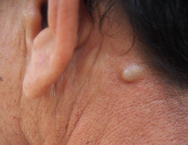Nếu bỗng nhiên thấy sưng hoặc nổi cục ở cổ và tai, đừng bao giờ bỏ qua những khả năng này-2