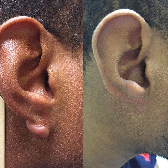Nếu bỗng nhiên thấy sưng hoặc nổi cục ở cổ và tai, đừng bao giờ bỏ qua những khả năng này-6