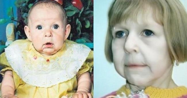 Chào đời với gương mặt già nua bị bố ruột chối bỏ, cô gái tự tạo nên kỳ tích cho đời mình, đánh bại mọi chẩn đoán y khoa-1
