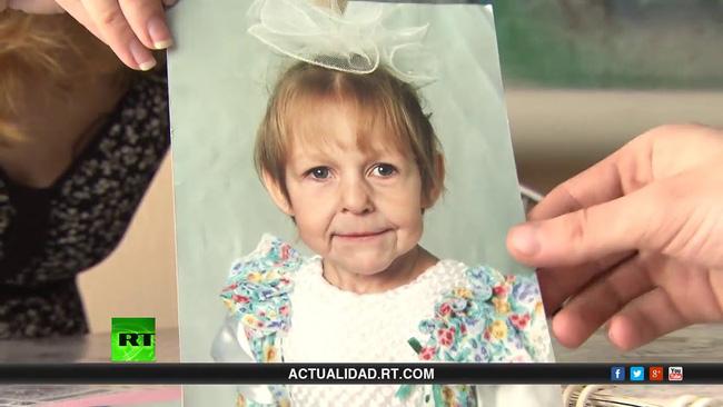 Chào đời với gương mặt già nua bị bố ruột chối bỏ, cô gái tự tạo nên kỳ tích cho đời mình, đánh bại mọi chẩn đoán y khoa-2