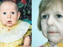 Chào đời với gương mặt già nua bị bố ruột chối bỏ, cô gái tự tạo nên kỳ tích cho đời mình, đánh bại mọi chẩn đoán y khoa