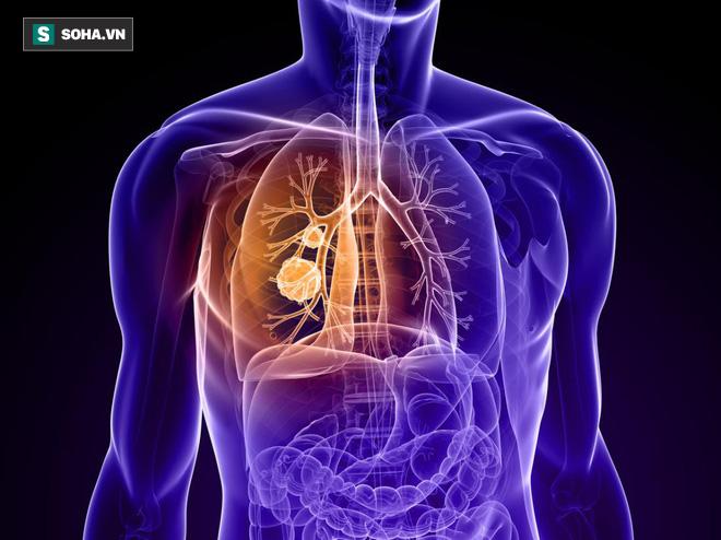 Ung thư cũng biết chọn mặt gửi mầm bệnh với 8 nhóm người: Ai cũng nên xem để phòng tránh-1