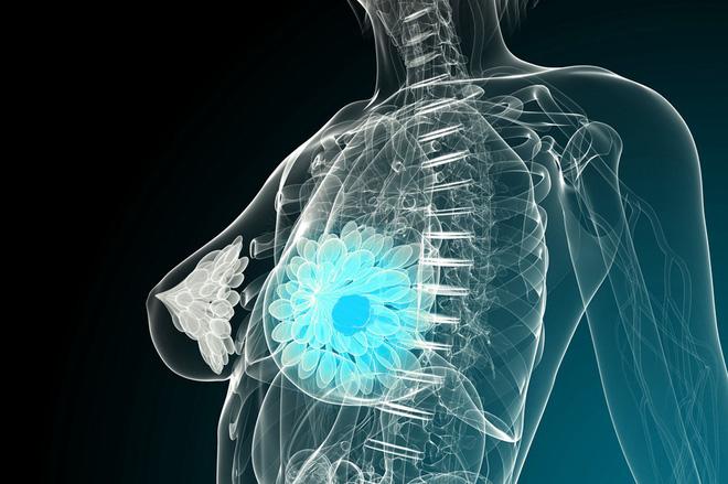 Ung thư cũng biết chọn mặt gửi mầm bệnh với 8 nhóm người: Ai cũng nên xem để phòng tránh-2