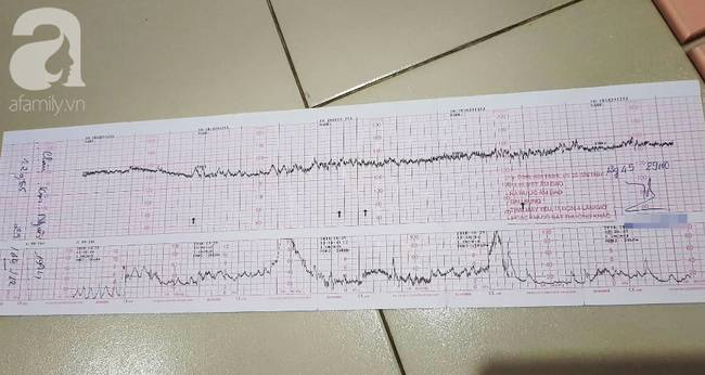 Bệnh viện Từ Dũ công bố nguyên nhân vụ thai phụ 24 tuổi bị mất con sắp sinh: Do đột tử-4