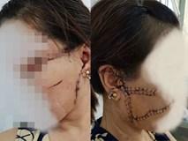 Gã chồng cắt gân chân vợ do ghen tuông lĩnh 27 tháng tù