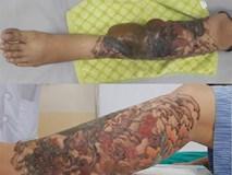 Xăm dễ, xoá không hề dễ: Cô gái trẻ suýt mất chân vì xoá hình xăm
