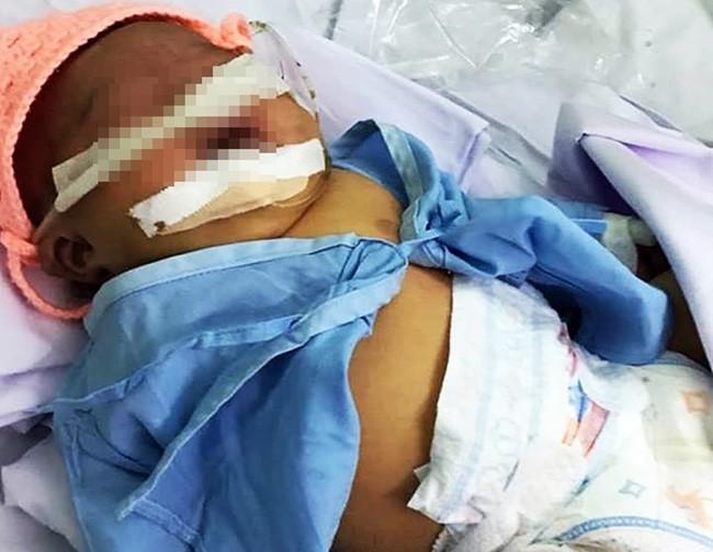 Bé gái nặng 4kg nhưng cho sinh thường ở Bình Thuận bị tổn thương thần kinh cánh tay và hôn mê-2