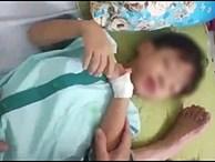 Bị chó cắn, bé trai 5 tuổi ở Quảng Nam phát bệnh dại rồi tử vong thương tâm