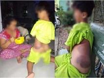 Mẹ học sinh lớp 1 khuyết tật bị giáo viên đánh bầm tím người: