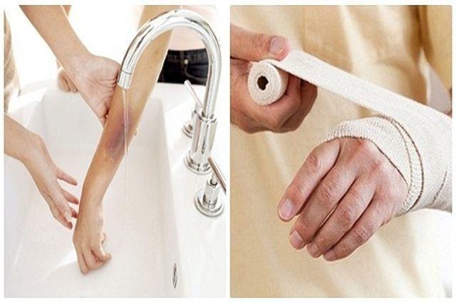 Chân người phụ nữ tím đen sau khi bị bỏng, lý giải của bác sĩ khiến nhiều người giật mình-3