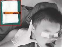 TP.HCM: Bé trai 9 tuổi bị bút chì do bạn đùa để dưới ghế đâm xuyên mông