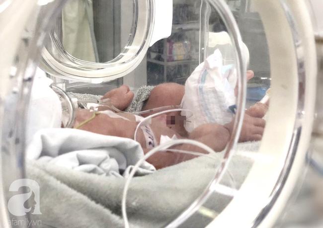 Bé gái 4kg ngạt thở, liệt cánh tay phải ở Bình Thuận: Do rủi ro trong cuộc sinh-1